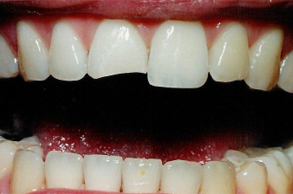 Damaged_or_Broken teeth