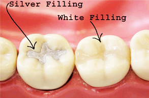 Dental_Filling