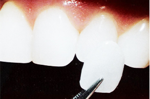 Dental_Veneers