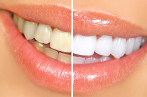 Discolored_or_Stained teeth