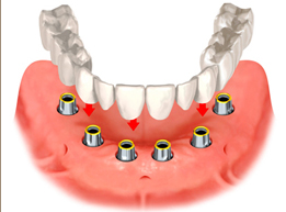 multiple-implant